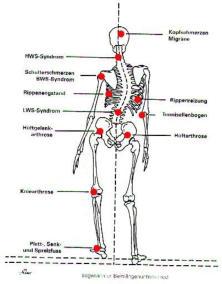 Beinlngendifferenzjpg